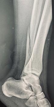 Fracture de la cheville 1