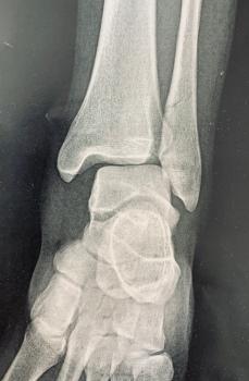 Fracture de la cheville 2